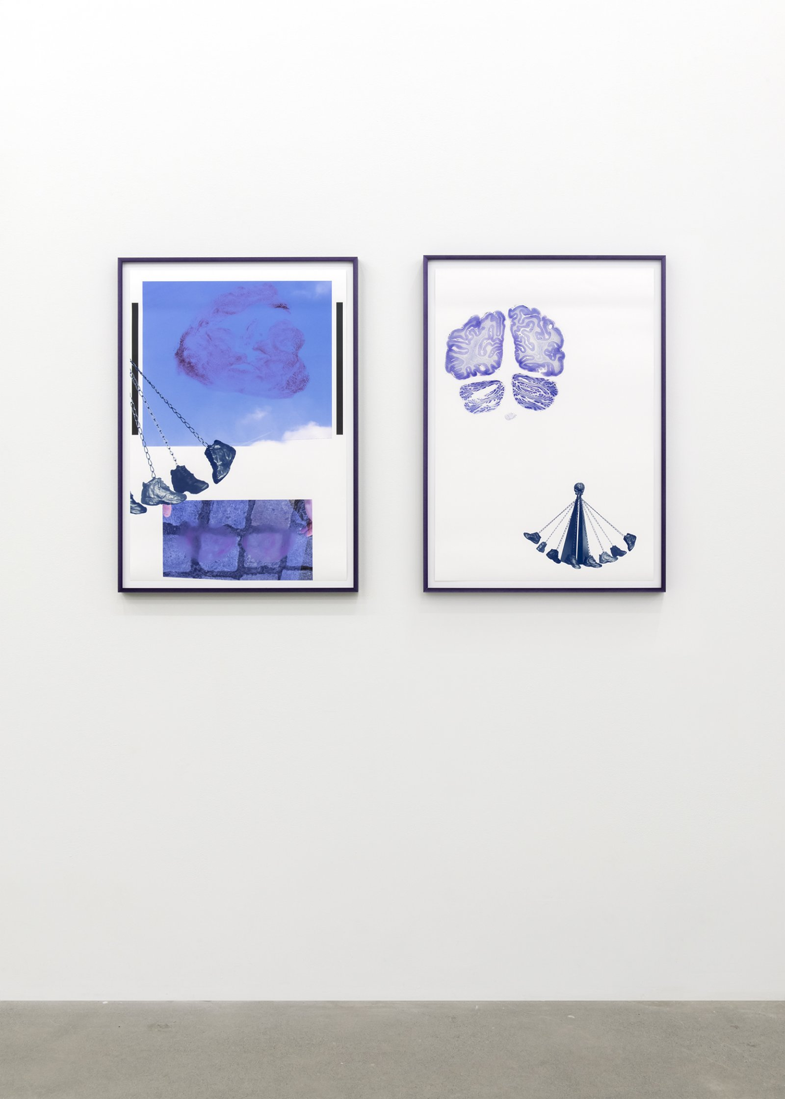 ​Judy Radul, End of the Autopsy (Brain and Boot), 2018, inkjet prints on paper, frames, diptych, each 32 x 22 in. (85 x 56 cm) by Judy Radul